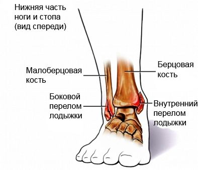 ankle-fracture.jpg
